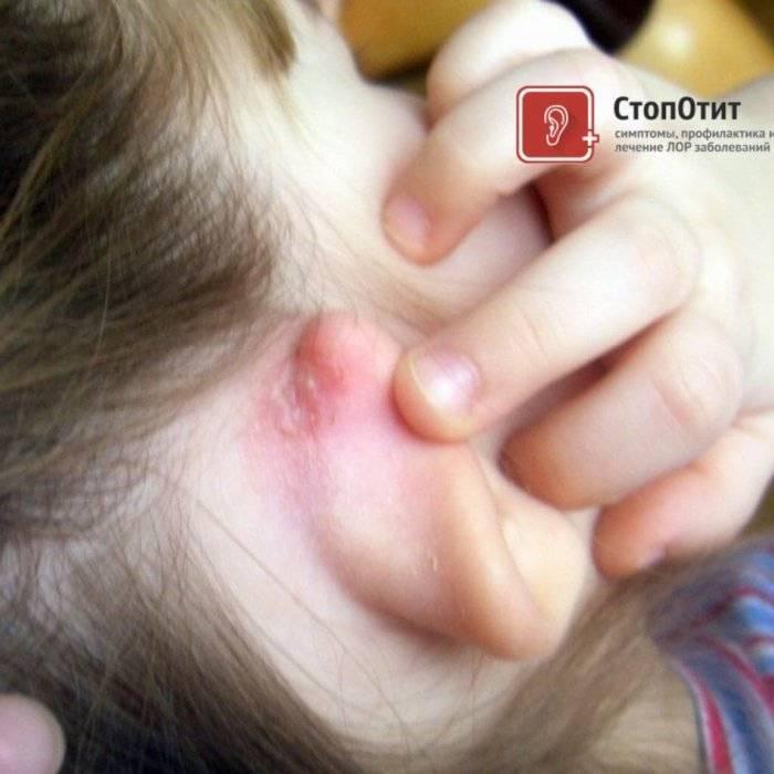 У грудничка трещины за ушами