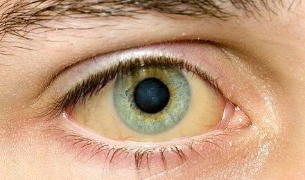Желтые белки глаз у новорожденных и виды желтухи