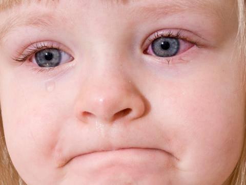 Опух глаз у ребенка