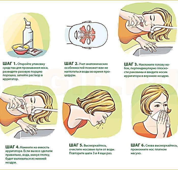 Как и чем можно промыть нос ребенку: как сделать раствор для промывания носа ребенку в домашних условиях