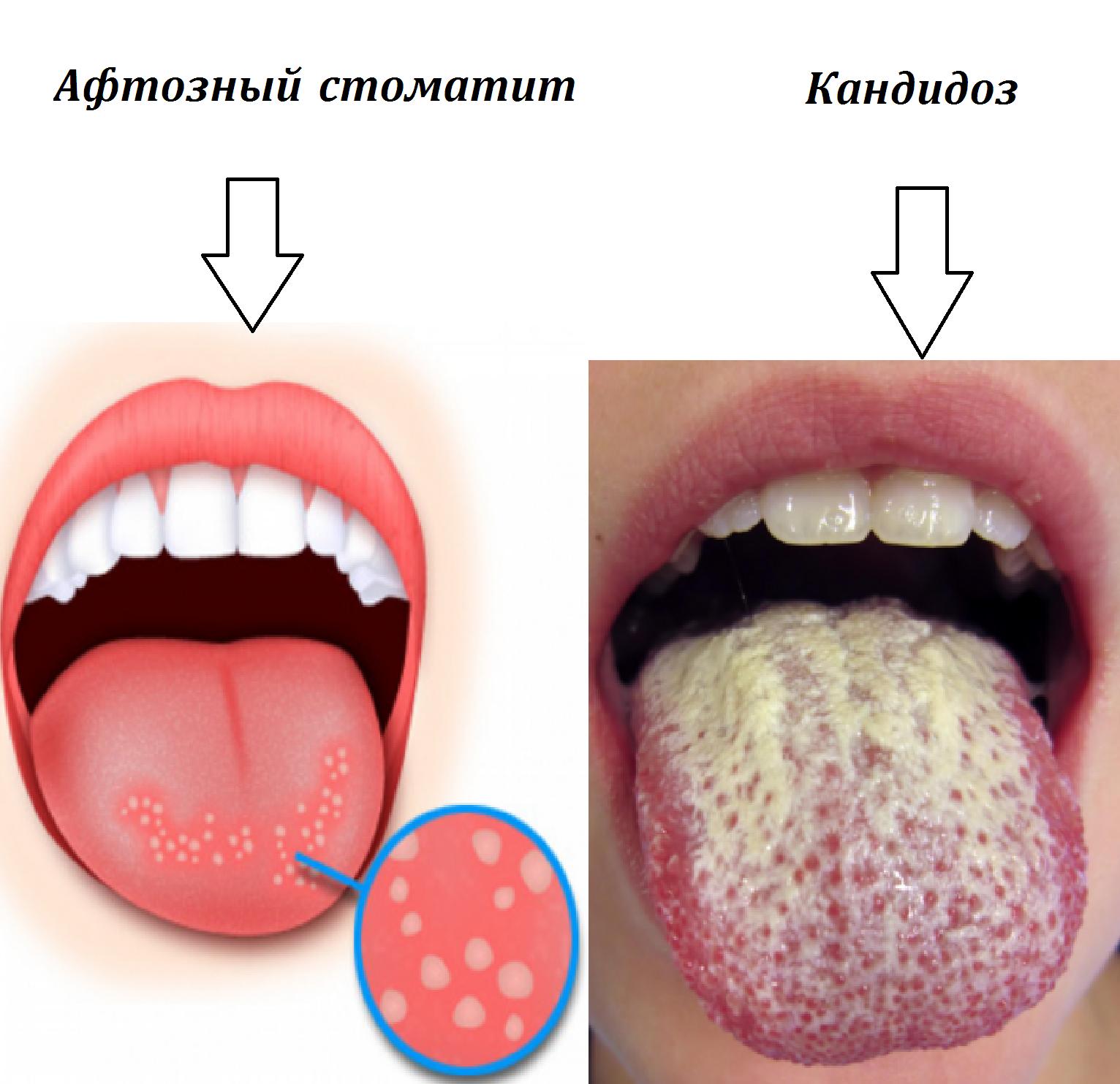 Что делать если у ребенка во рту появились язвы