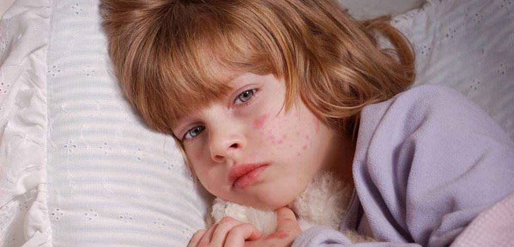 Внезапная экзантема (розеола) у детей и взрослых: симптомы, лечение