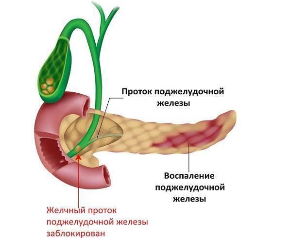 Что делать если болит поджелудочная железа