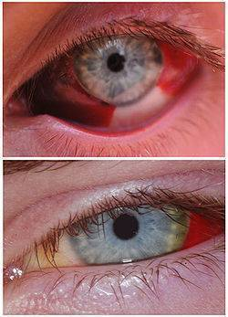 Почему у новорожденных могут быть желтые белки глаз