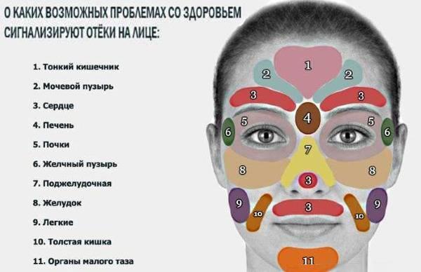У грудничка гноится глазик – что делать? чем лечить, если глаз слезится и опух?
