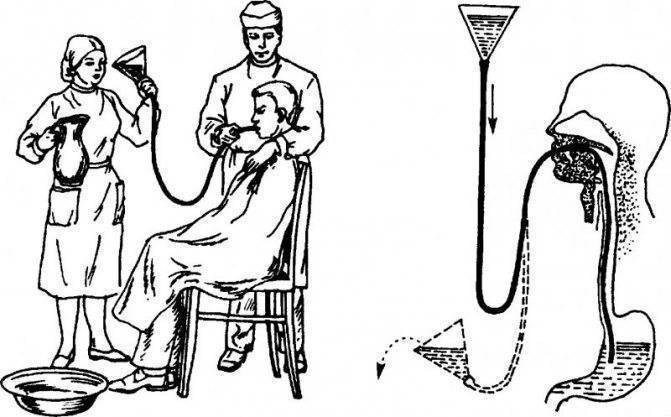 Как правильно делать клизму для очищения кишечника?
