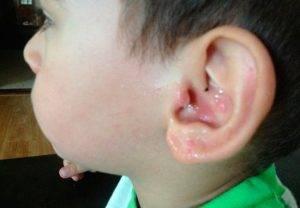 Причины и лечение крови из уха при отите у ребенка и взрослого