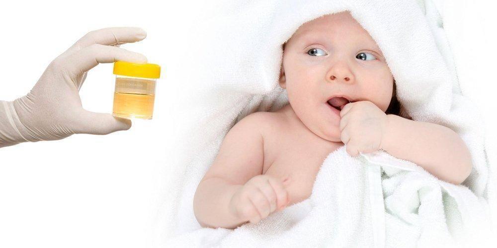 Как собрать мочу у грудничка, у новорожденной девочки или мальчика
