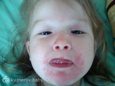 Крик души. непонятная сыпь вокруг рта у мальчика 4х лет. много букв.