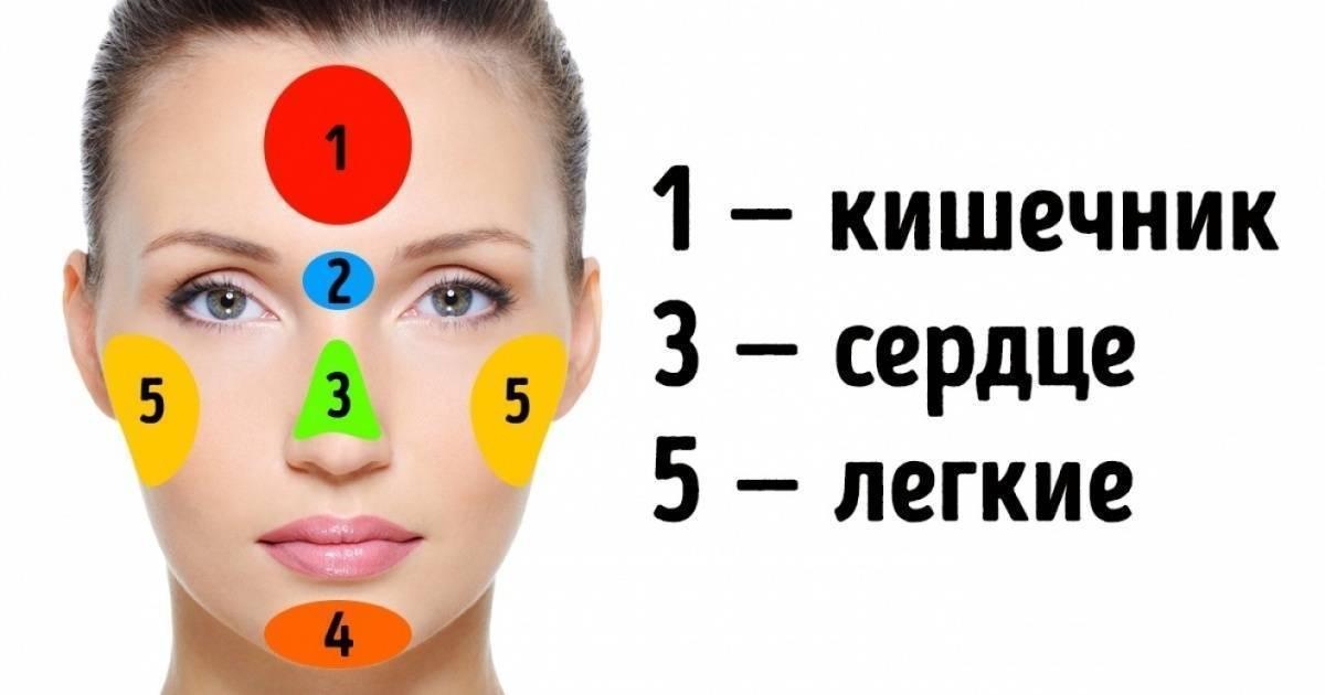 Аллергия или гормональная сыпь?