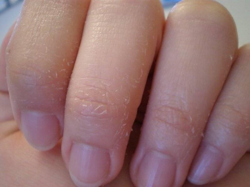 Облазят руки у ребенка: возможные причины, лечение и профилактика | детки-карапузы