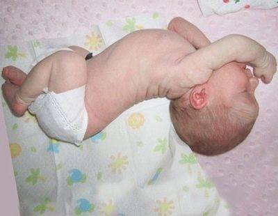 Фебрильные судороги у детей при температуре