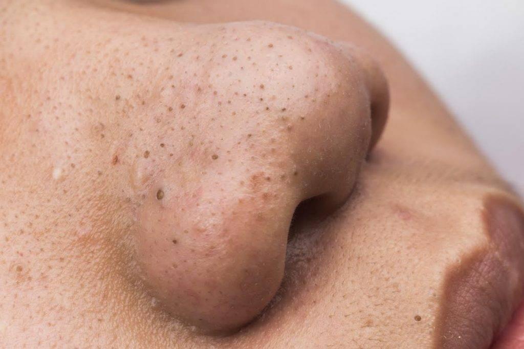 Прыщи на лице у новорожденного, на теле (24 фото): гормональные прыщи в месяц, белые и красные у грудничка