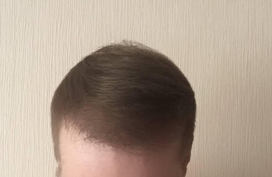 Когда у детей начинают нормально расти волосы?
