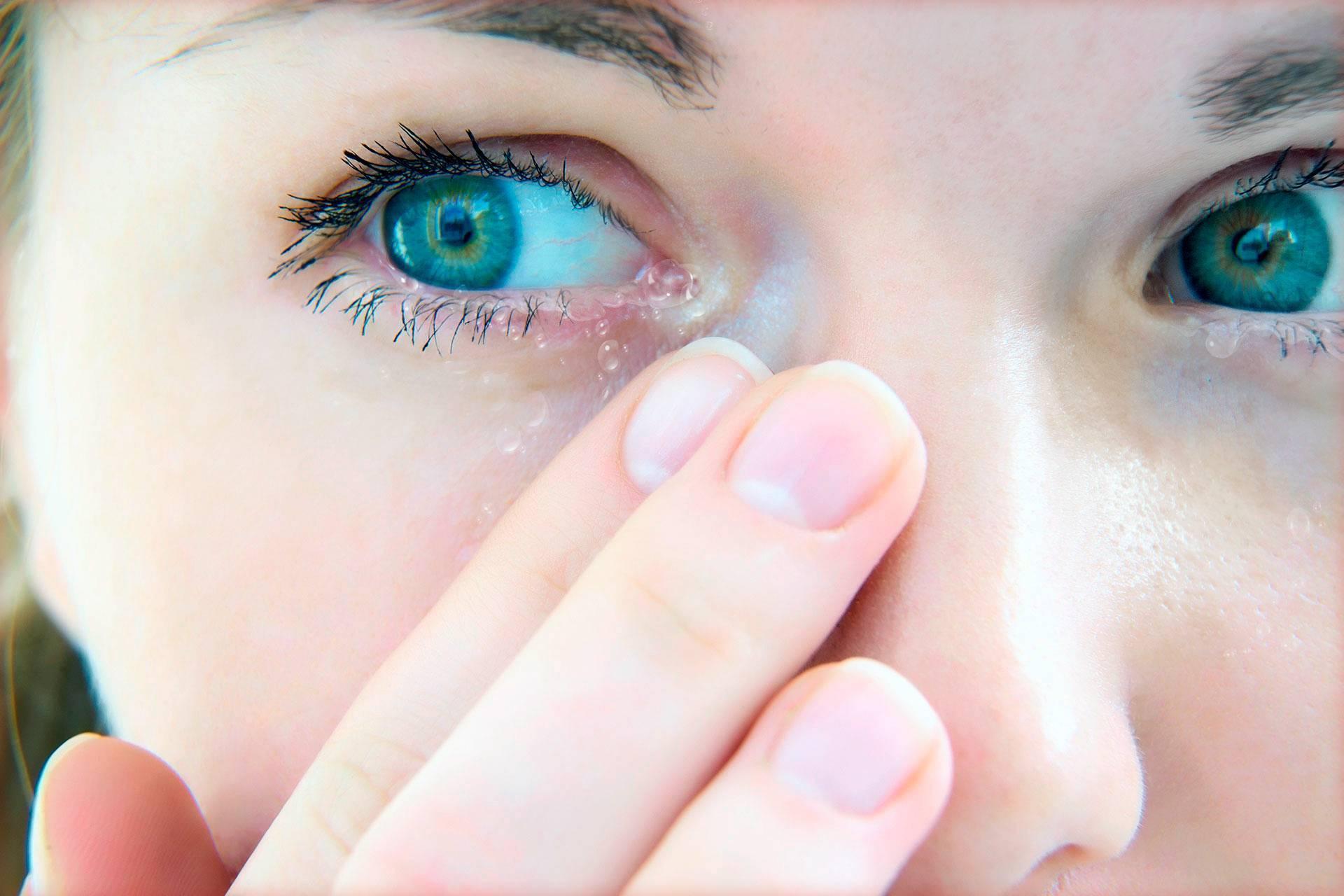 Почему у ребенка слезятся глаза?