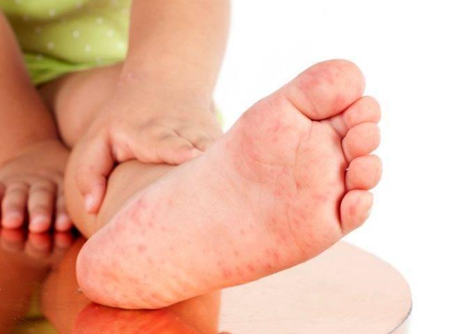 Водянистые прыщи на пальцах рук и ладонях: причины, методы лечения и профилактики