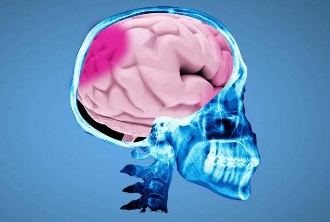 Известные медицине признаки и симптомы сотрясения мозга у детей до 1-2 лет: как распознать травму?