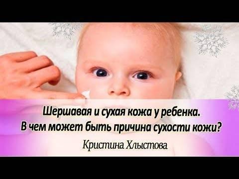 Почему шелушится кожа на голове у грудничка и как помочь малышу