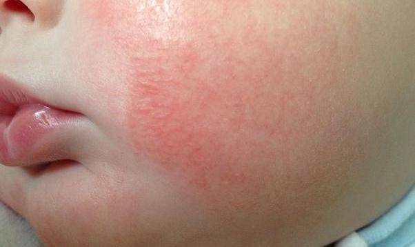 Сыпь на щеках у грудного ребенка. фото, что это значит, что делать, как лечить