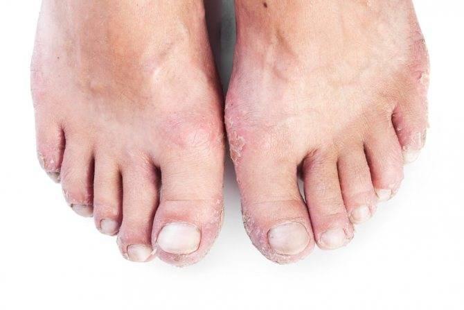 Шелушится кожа на ногах у ребенка, новорожденного. причины и лечение