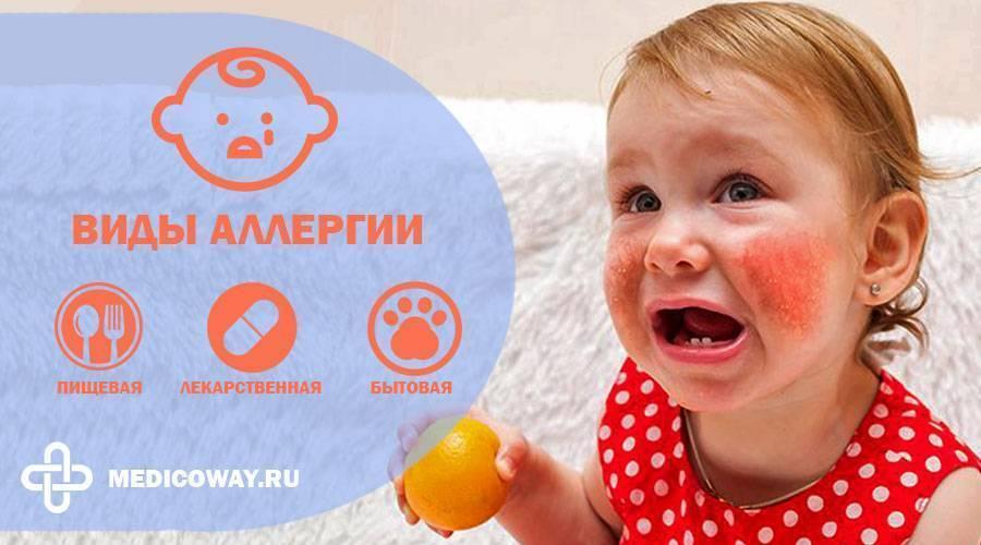 Может ли быть аллергия на памперсы у малыша?