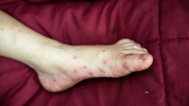 Сыпь на локтях у ребенка: фото прыщей с пояснениями причин высыпаний, почему пупырышки на коленках?