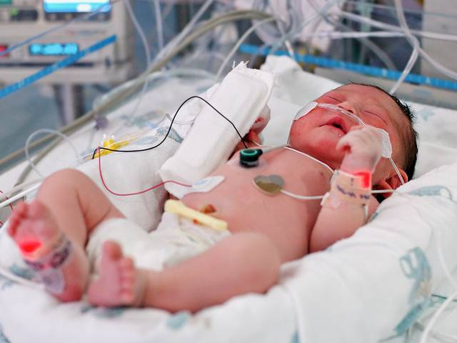 Локализованная гнойная инфекция у новорожденных