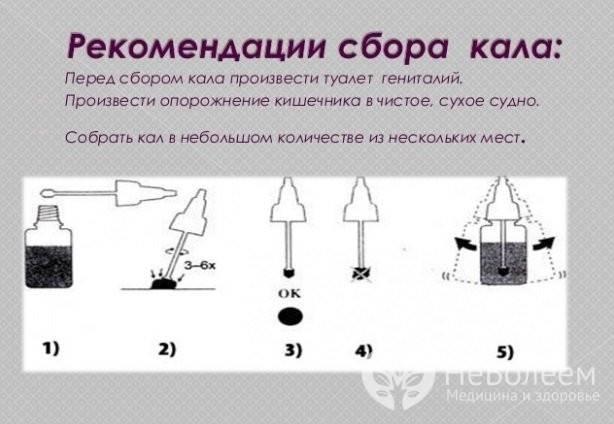 Подскажите,как собрать кал для анализа? - запись пользователя юлия (juicy-julia) в сообществе здоровье новорожденных в категории анализы - babyblog.ru
