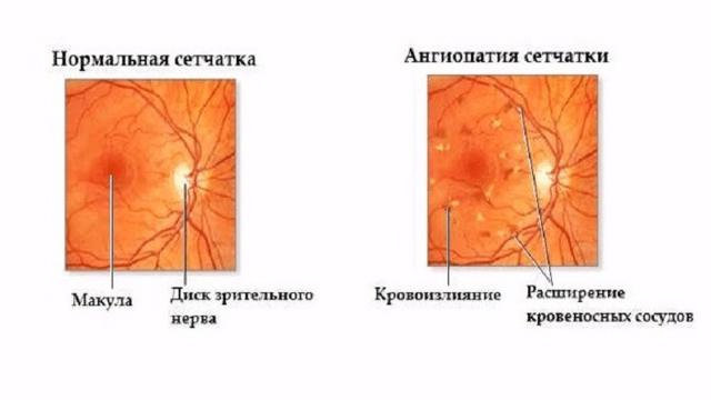 Ангиопатия сетчатки обоих глаз ои: что это такое, причины развития, симптомы, как и чем лечить