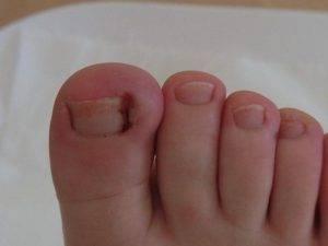 Показания к удалению вросшего ногтя у ребенка