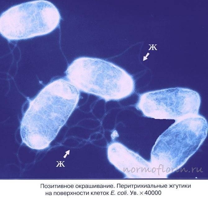 Повышено содержание лактозонегативной кишечной палочки у взрослых