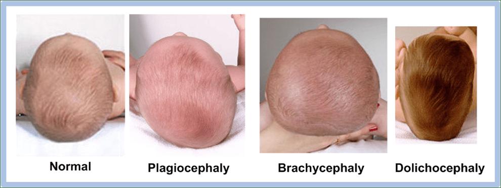 Можно ли изменить форму черепа взрослому человеку. что делать, если у грудного ребенка неровная голова, как исправить