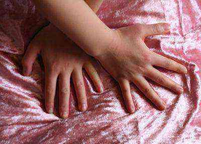 Что делать, если облазит кожа на пальцах рук у ребенка