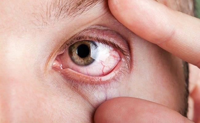 Слезится глаз у ребенка — возможные причины выделения слезной жидкости
