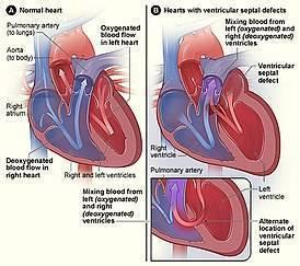 Врожденный порок сердца новорожденных — причины и последствия
