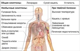 Понос у грудничка: что делать, признаки, чем лечить, с рвотой и температурой