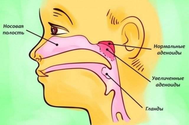 Воспаление миндалин у детей
