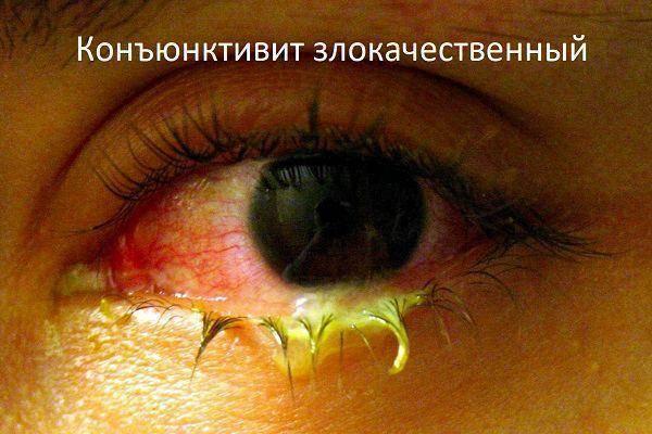 Причина желтых белков глаз у новорожденных