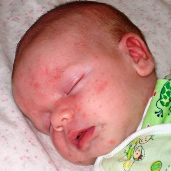 Сыпь у ребенка 1 месяц