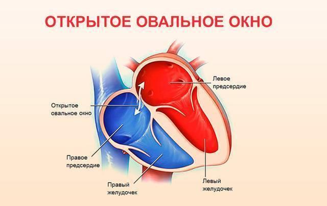 Открытое овальное окно в сердце у детей: причины, узи, норма