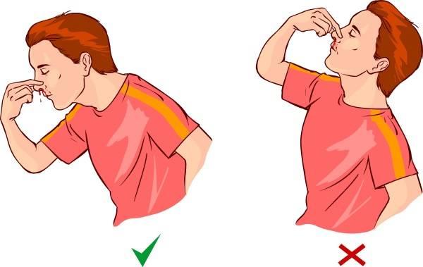 Кровь из носа у ребенка, грудничка или новорожденного