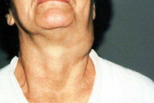 Что делать и как лечить воспаленный лимфоузел на шее у ребенка