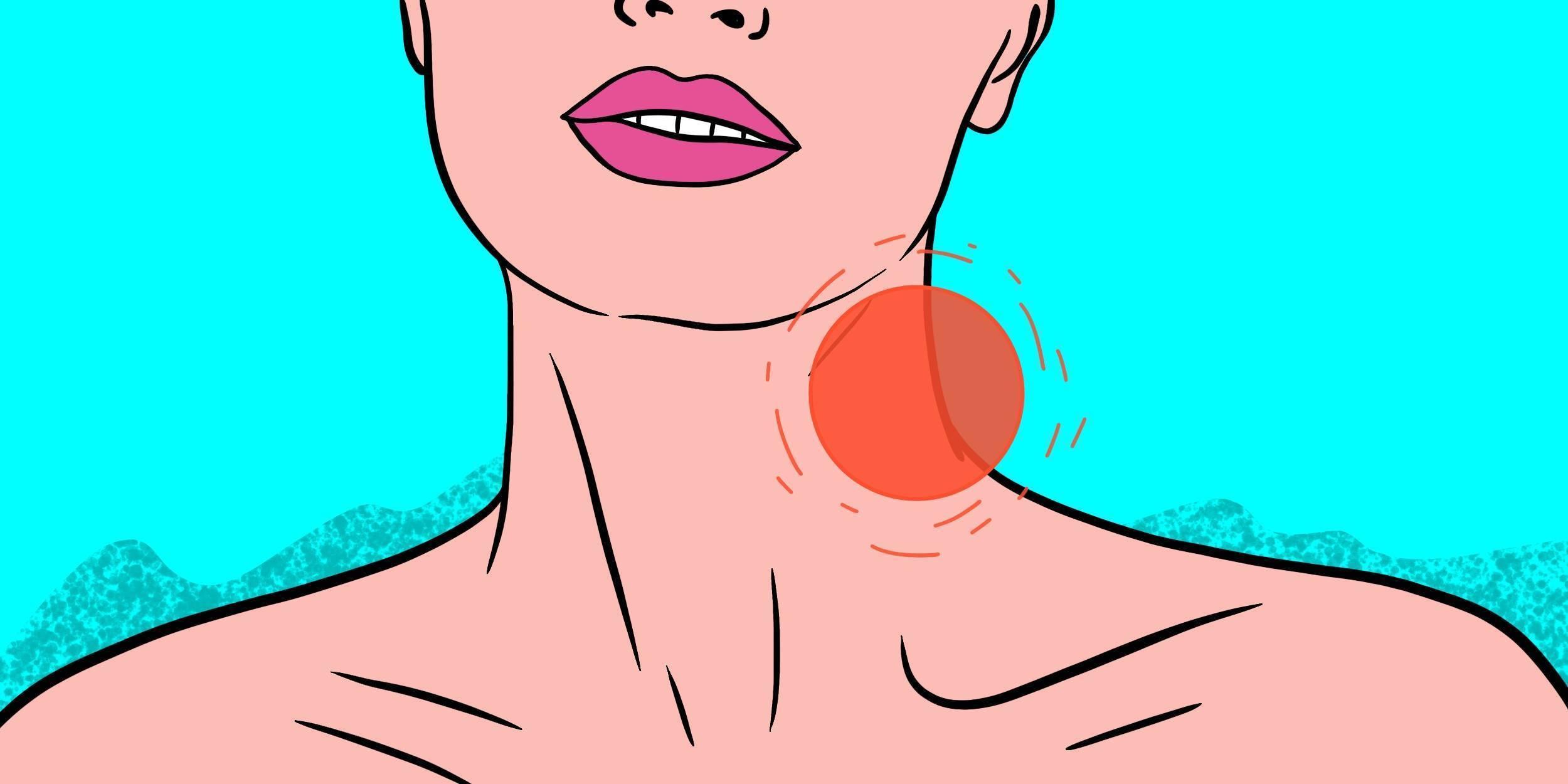 Шейный лимфаденит: симптомы и лечение воспаления лимфоузлов на шее у ребенка