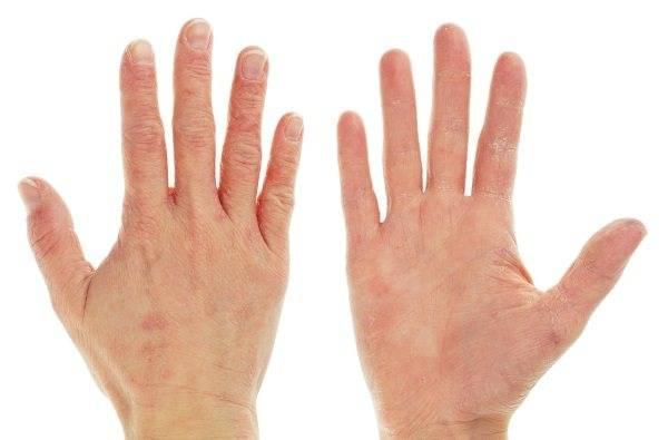 Что делать, если у ребенка облазит кожа на пальцах рук