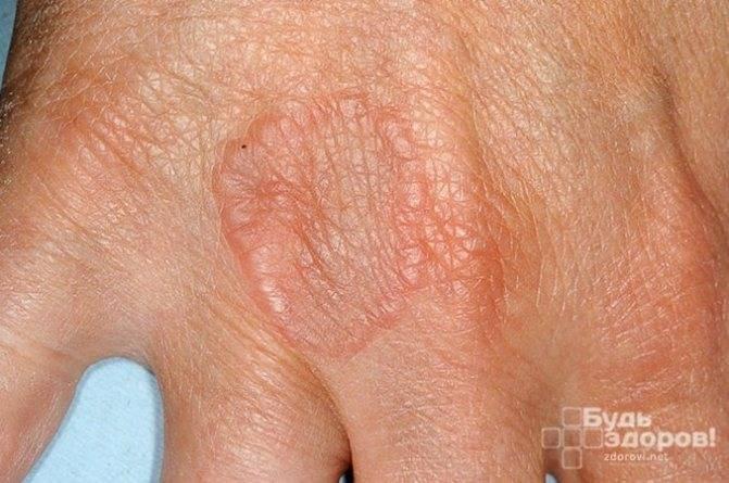 Доктор комаровский про сыпь у ребенка: причины появления на теле и лице, ладошках, вокруг рта, на попе – что делать