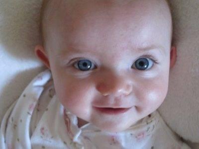 Причины расширенных зрачков у ребенка