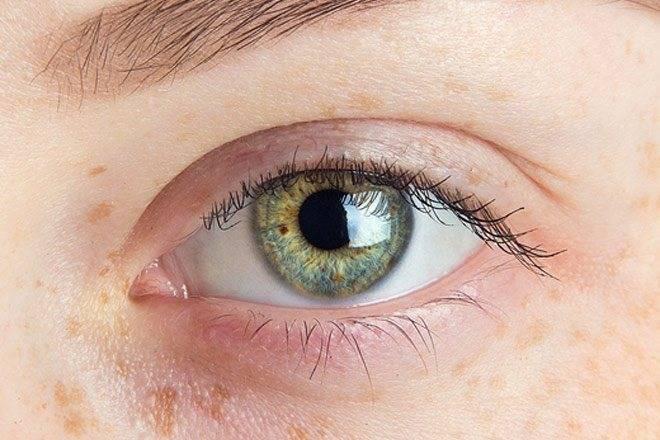 Ангиопатия сетчатки у грудничка: что это такое, причины развития и симптомы, лечение глаз у новорожденных