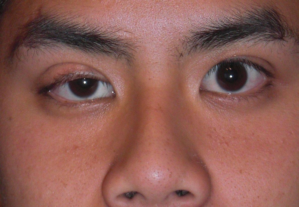 Что делать, если гноится глаз у грудничка: лечение