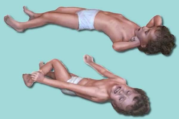 Судороги при температуре у ребенка — что делать