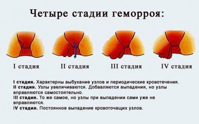 Прожилки крови в стуле - капелька крови в кале у грудничка - запись пользователя саша (id1297023) в сообществе здоровье новорожденных в категории стул новорожденного - babyblog.ru